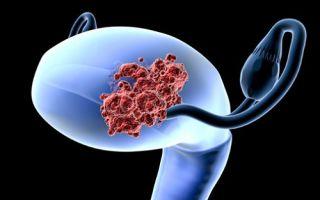 Прогноз при раке матки