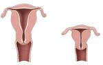 Что такое гипоплазия матки