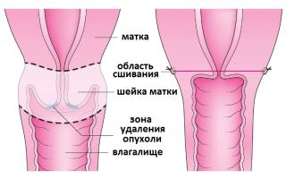 Последствия после удаления матки и шейки матки