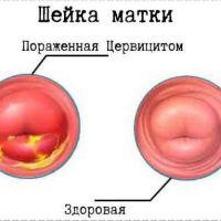 Симптомы воспаления цервикального канала