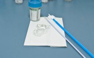 Расшифровка онкоцитологии шейки матки