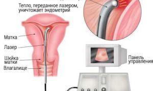 Операция по удалению эндометриоза матки
