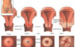 Расшифровка мазка на цитологию шейки матки