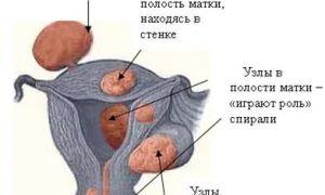 Что такое миоматозный узел матки