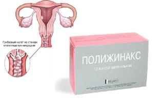 При применении полижинакс заниматся сексом можна без презерватива