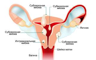 Симптомы и признаки субсерозной миомы матки