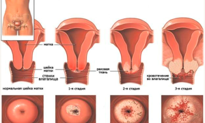Кровотечение при раке шейки матки