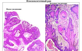 Прогноз при плоскоклеточном неороговевающем раке шейки матки