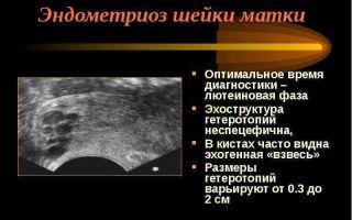 Что такое эндометриоидная киста шейки матки