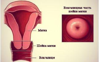 Какие размеры матки и шейки считаются нормой