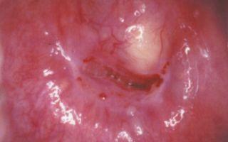 Лечение и симптомы кисты в матке