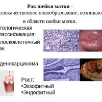 Признаки ранней стадии рака шейки матки