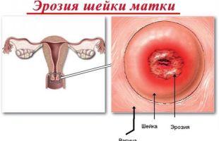 Эрозия на шейке матки
