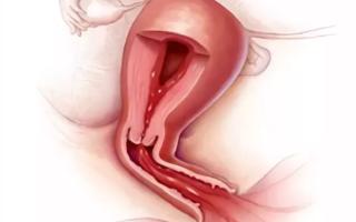 Что делать при кровотечении из матки