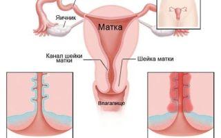 Лечение эндоцервицита шейки матки