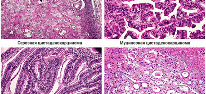 Что такое муцинозная аденокарцинома