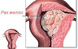 Виден ли на УЗИ рак матки и шейки матки