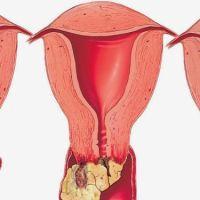 Куда метастазирует рак шейки матки