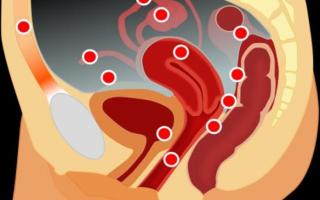 Наружный и экстрагенитальный эндометриоз