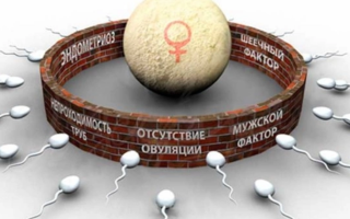 Женское бесплодие: диагностика, симптомы, лечение