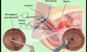Анализы на определение рака шейки матки