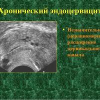 Лечение хронического эндоцервицита