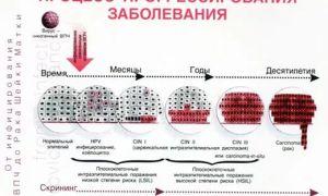 Лечение впч 16 и 18 типов у женщин