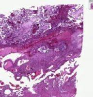 Гистология после выскабливания замершей беременности