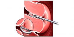 РДВ в гинекологии