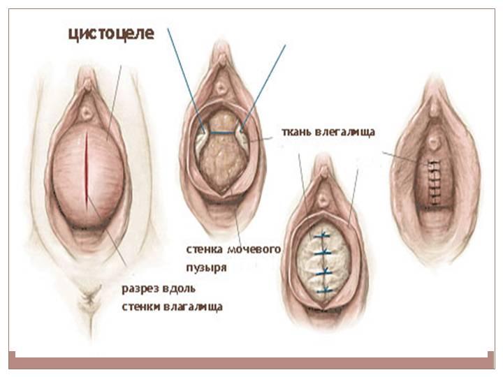 Влагалище рожавшей женщины