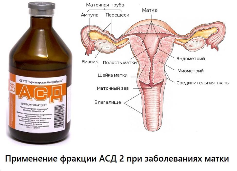 АСД при миоме матки