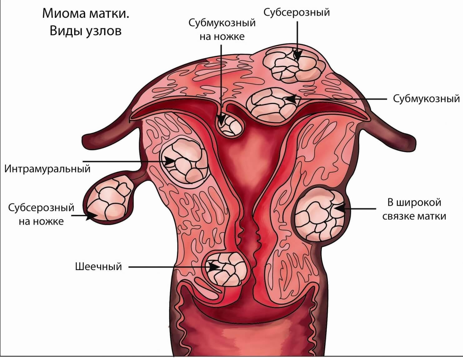 Субсерозная миома матки и беременность