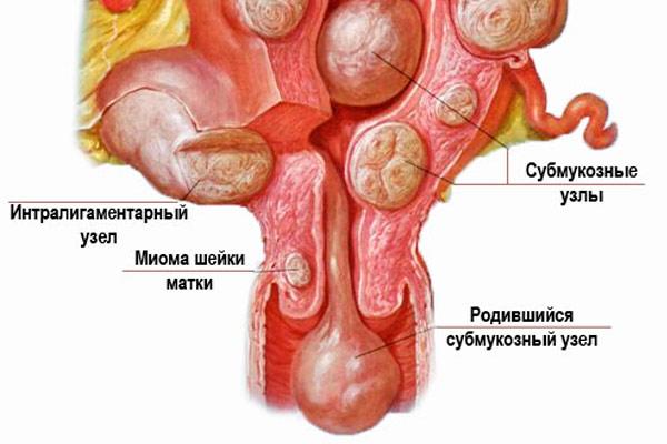 Миома матки с субмукозным ростом узла