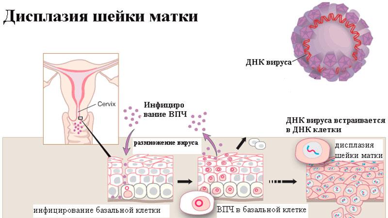 Дисплазия шейки матки 3 степени
