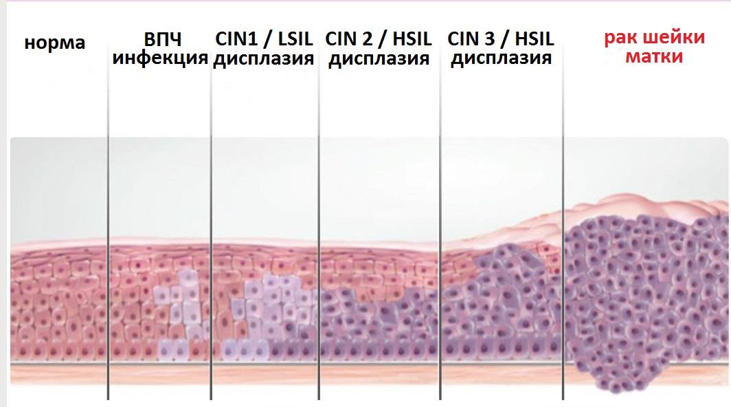 Erythroplakia histopathology