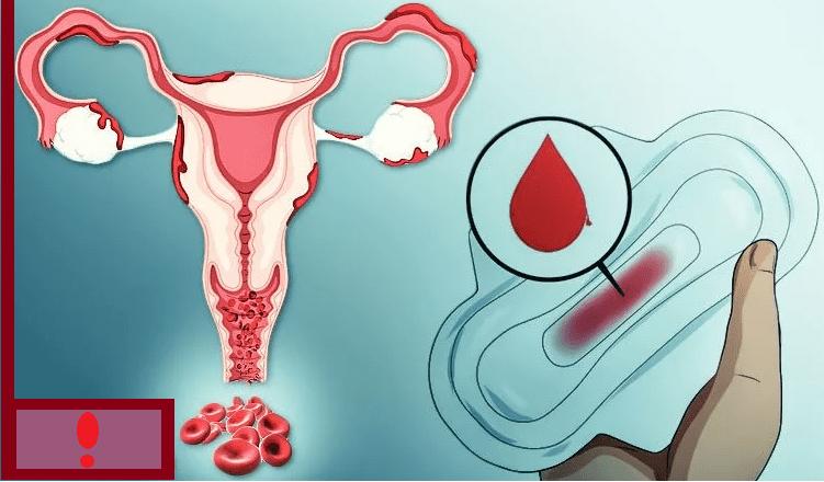 У беременной кровит шейка матки 3