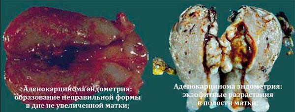 как лечится рак низкодифференцированный молочной железы