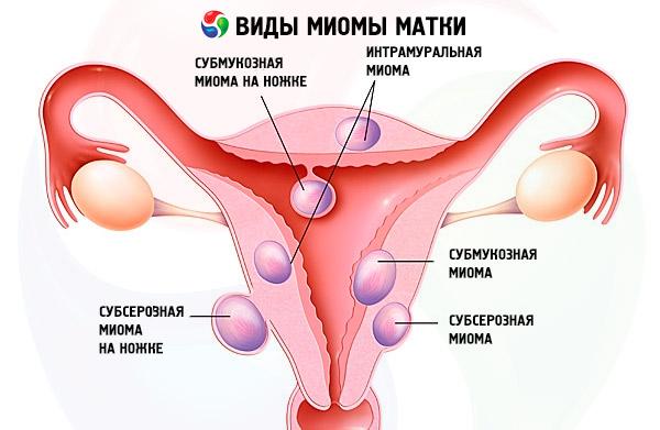 Секс вовремя беремености и миома матки
