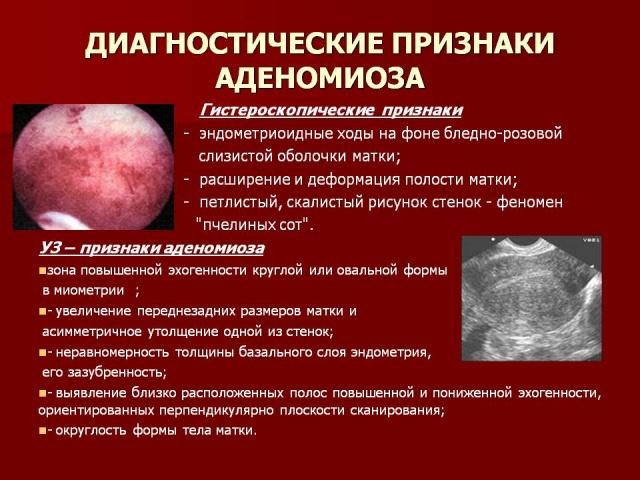 Маточный эндометриоз симптомы