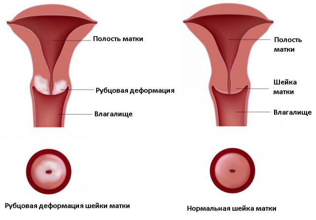деформация шейки матки фото