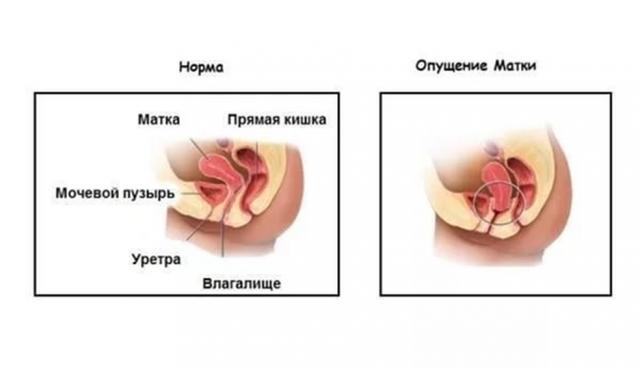 operatsiya-na-podnyatie-stenki-vlagalisha-stoimost