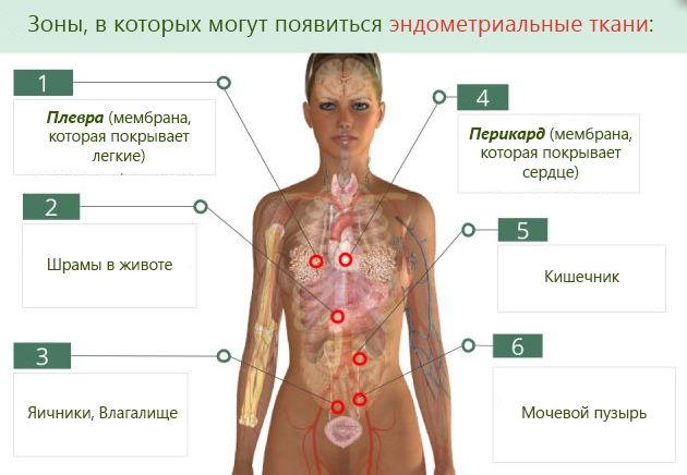 Признаки эндометриоза у женщин лечение