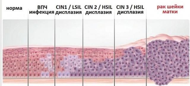 Конизация шейки матки при дисплазии 3 степени