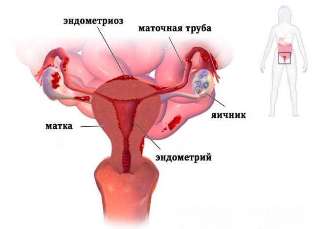 При сексе больно матку