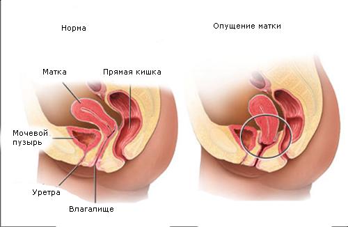 Опущение матки причины симптомы диагностика и лечение