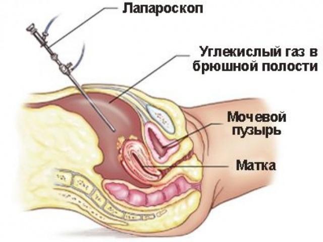 Лапароскопия субсерозной миомы матки