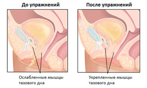 vo-vlagalishe-kak-morshini