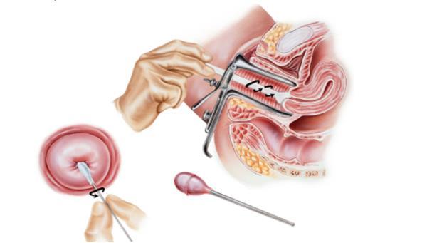 vaginalnie-videleniya-mikroskopicheskoe-issledovanie