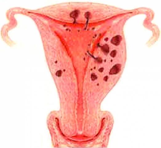 Как лечить эндометриоз МедТех Дом