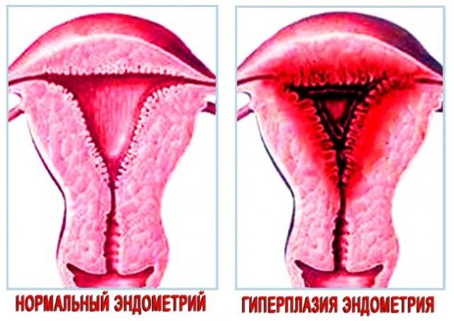 От чего разрастается эндометрий